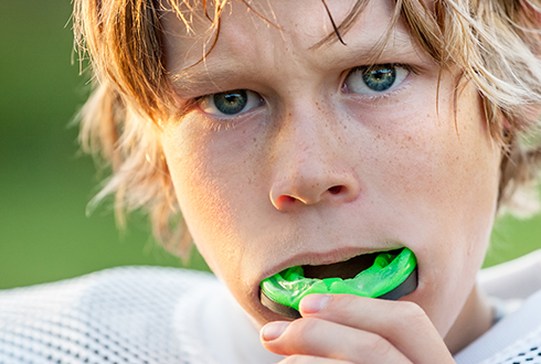 Teen boy placing green athletic mouthguard