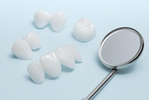 A number of different tooth-colored dental restorations