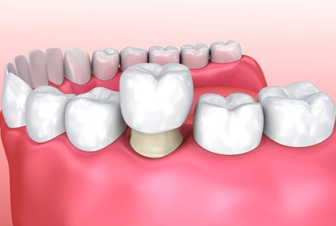 dental crown in The Woodlands