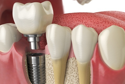 Closeup of implant supported replacement tooth placement