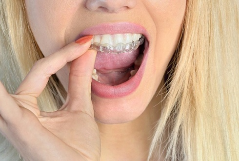 blonde woman putting in Invisalign aligners
