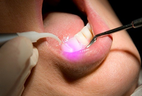 Patient receiving laser dentistry