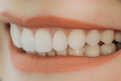 close up smile after teeth whitening in The Woodlands